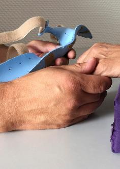 Handtherapie, Orthopädie, Schienenversorgung,
